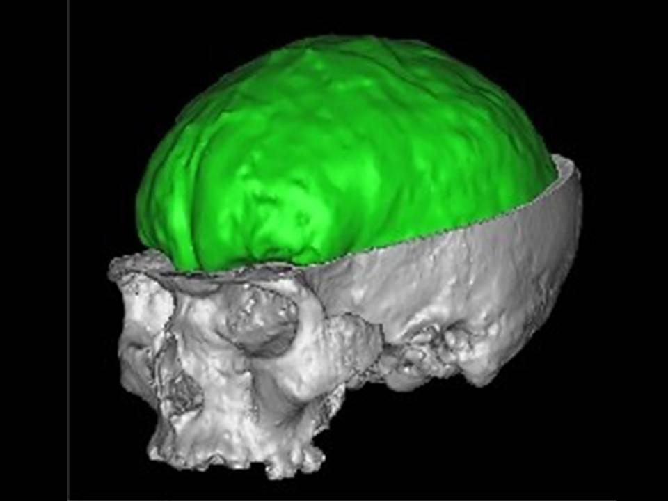 Tomografía computerizada en Homo sapiens